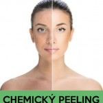 Chemický Peeling